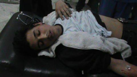 عشرات القتلى والجرحى بغازات خانقة في دمشق وريفها