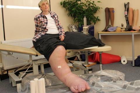 ساق امرأة تزن 108 كغم