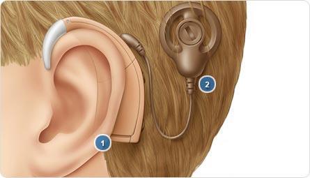 حلول جديدة من الأجهزة السمعية الطبية