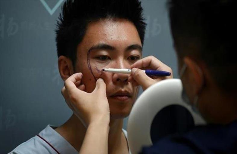 عمليات التجميل تستهوي الرجال في الصين