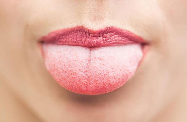 لون لسانك قد يدل على نقص فيتامين B12