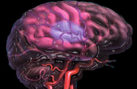 الخلايا الجذعية  تحارب الجلطة الدماغية