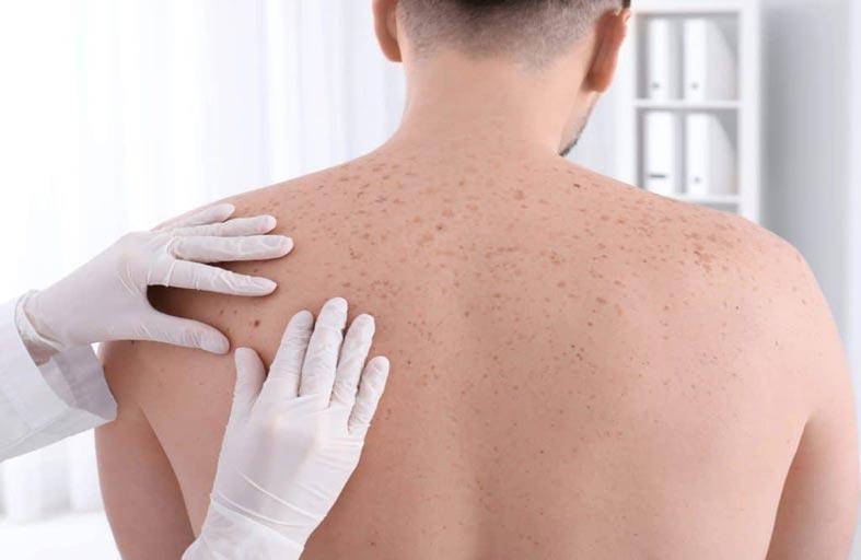 سرطان الجلد.. ثمانية علامات رئيسية تحذر من أن الشامة قد تكون سرطانية!