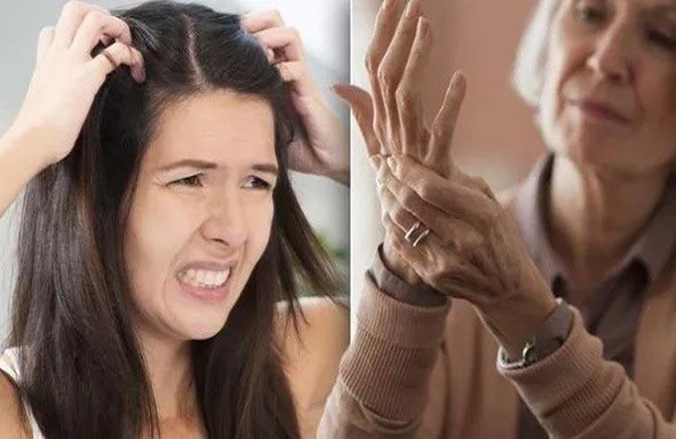 قشرة الرأس قد تكون مؤشراً على مرض في المفاصل