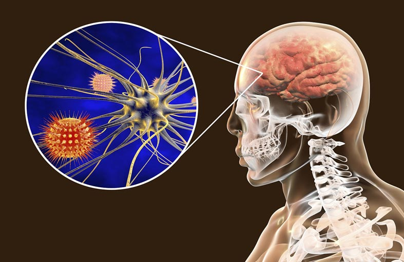 التهاب السحايا البكتيري: المضاعفات واللقاحات الضرورية