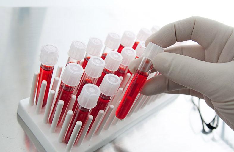ما هي فصائل الدم الموجودة؟