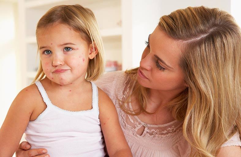 (الجدري)... كيف تتعاملين مع اصابة طفلك؟