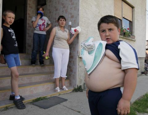 طفل جسده يجتذب المعادن
