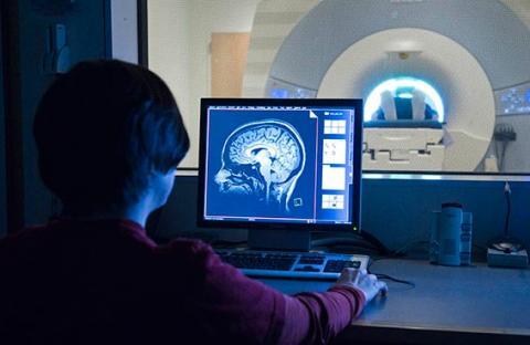باحثون ينجحون في ترميم قشرة الدماغ