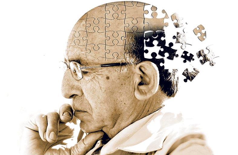 أداة ذكاء اصطناعي .. تتوقع بدقة الزهايمر  قبل سنوات من تشخيصه النهائي