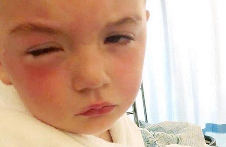 معقم يهدد  طفلاً بالعمى