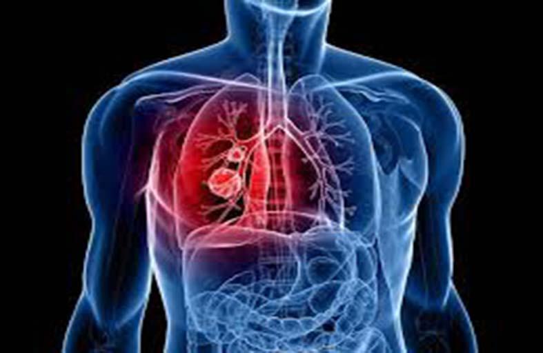 آلام شائعة تشير إلى إصابتك بسرطان الرئة