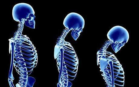 البيسفوسفونيت يحارب هشاشة العظام