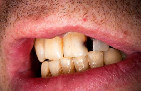تسوس الأسنان يقلل فرص الإصابة بسرطان الفم