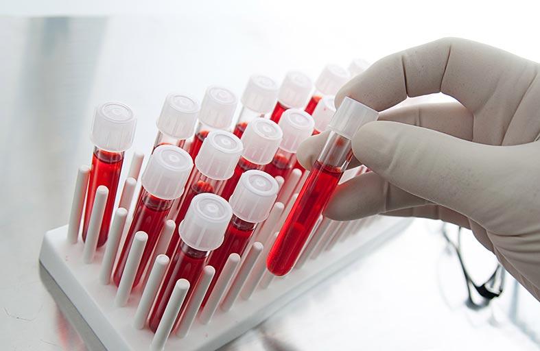 بروتين يحافظ على شباب خلايا الدم