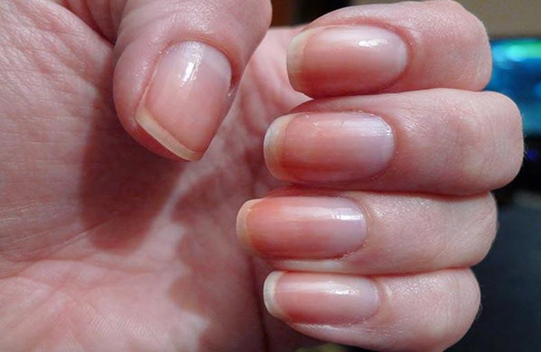 تغيرات الأظافر علامة على مشاكل الكبد