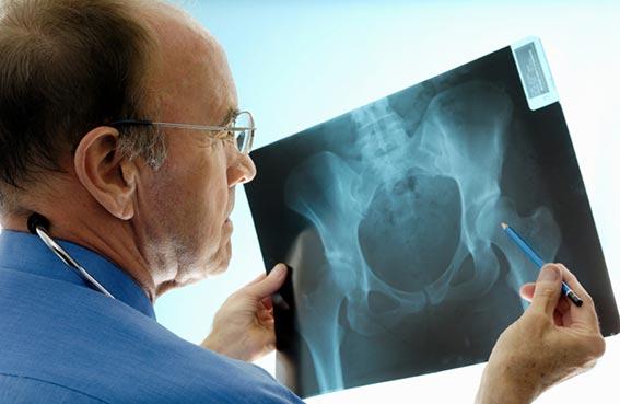 جراحة الورك الاصطناعي