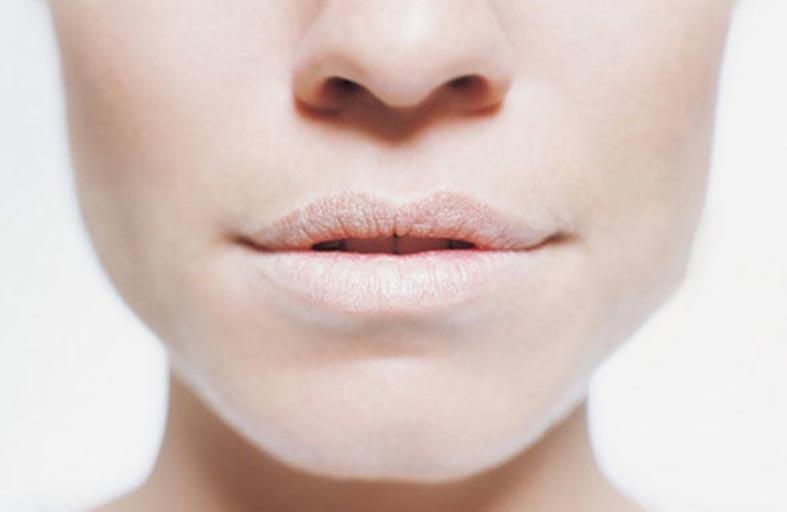 جفاف الفم.. الأسباب والأعراض.. والعلاج
