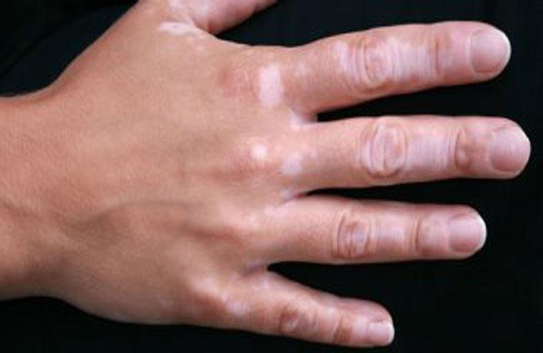 5 عوامل تزيد من خطر الإصابة بالبهاق