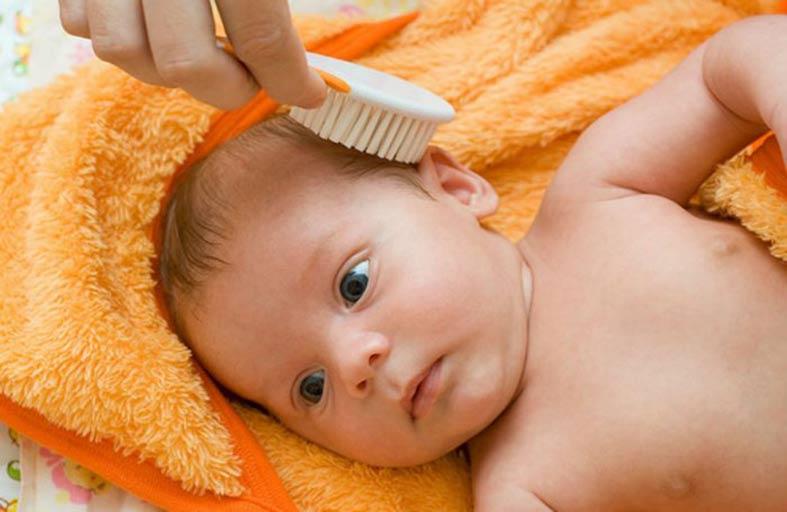 تعرّف على أسباب وعلاج قشرة الشعر عند الأطفال