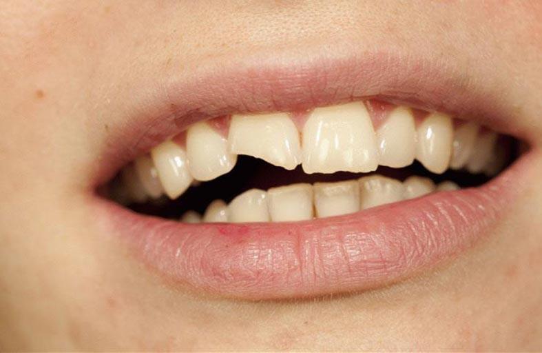 6 أطعمة تدمر أسنانك.. تعرف عليها