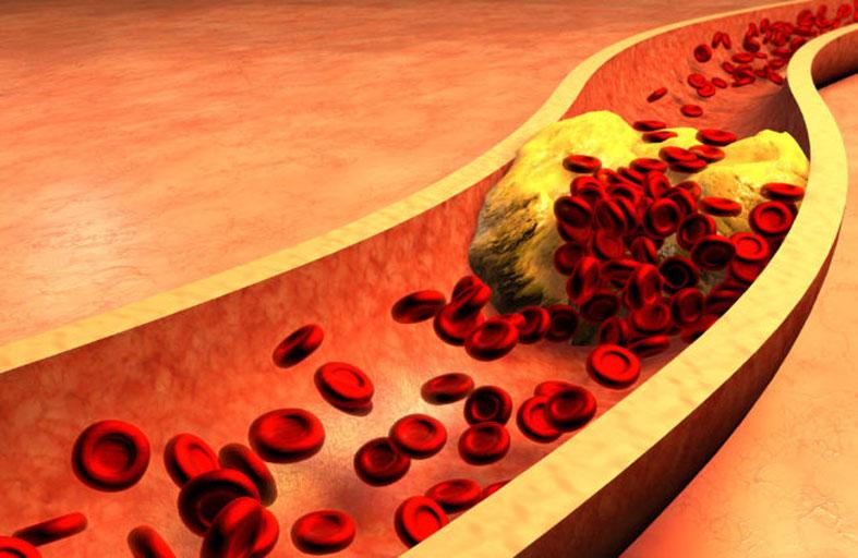 ما هو الكولسترول وما هي أنواعه؟