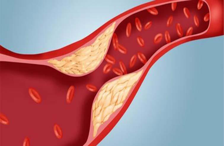 5 أسباب أكثر شيوعا وراء ارتفاع الكولسترول بالدم