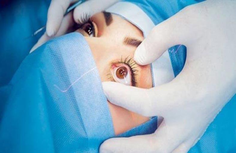 علاج ثوري في طب العيون يُغني عن زراعة القرنية