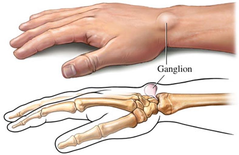 نصيحة طبية للتعامل مع الأكياس الزلالية في اليد والقدم