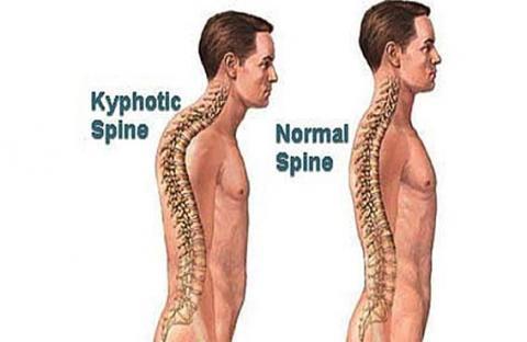 (انحراف العمود الفقري)... العلاج يعتمد على العمر وحجم الاعوجاج