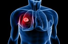 طبيب يكشف العامل الذي يمنع جراحة سرطان الرئة
