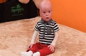طفل يشبه الدمى