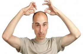 الكشف عن أحدث علاج لـ«الصلع»