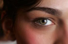 علامات المياه البيضاء على العين