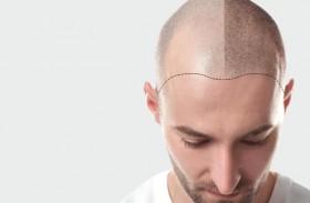 أضرار زراعة الشعر الطبيعي