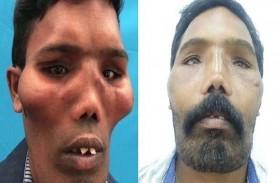 إعادة بناء وجه مريض