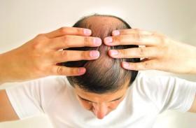 اكتشاف مادة كيميائية تحفز نمو الشعر