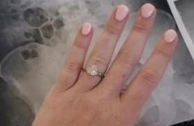 تبتلع خاتم خطوبتها بسبب كابوس في المنام