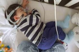 طفل يواجه أصعب خيار بين اليقظة أو الموت