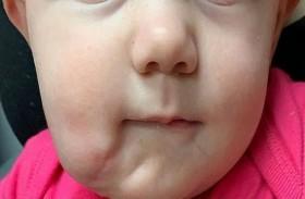 طفلة تخضع لجراحة رائدة بعدما ولدت بفم إضافي
