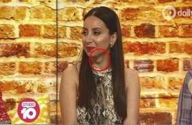 لقاء تلفزيوني يكشف «كارثة» في رقبة المذيعة