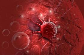 «الخلايا القاتلة» تعالج سرطان الدم.. وخبراء يعلنون التفاصيل