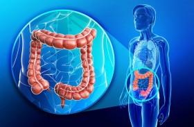 خيارات علاجية مبتكرة لمداواة سرطان الأمعاء