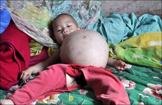 عملية قيصرية لإخراج توأم من بطن طفل