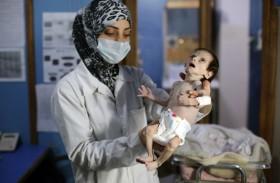 سوء التغذية يهدد أطفال الغوطة الشرقية المحاصرة