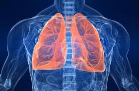 علاج ثوري لمرضى انتفاخ الرئة الحاد