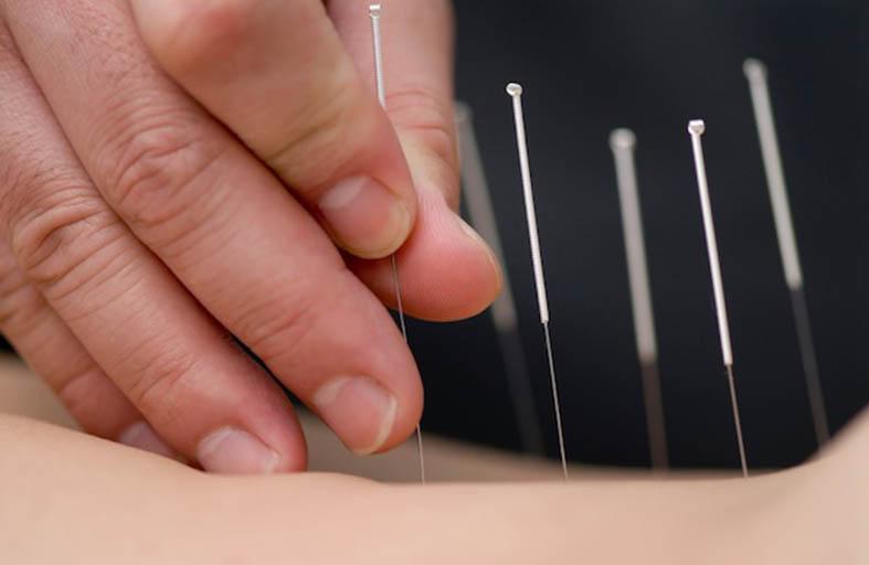 الإبر في علاجات التجميل تهدد بأمراض الدم