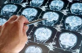 ابتكار رذاذ خاص لاستئصال أورام الدماغ