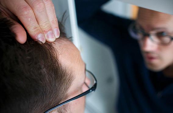 نتف الشعر طريقة جديدة لعلاج تساقطه