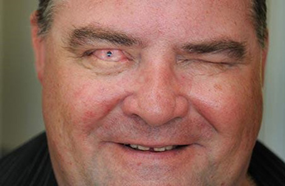 رجل يرى من أحد أسنانه